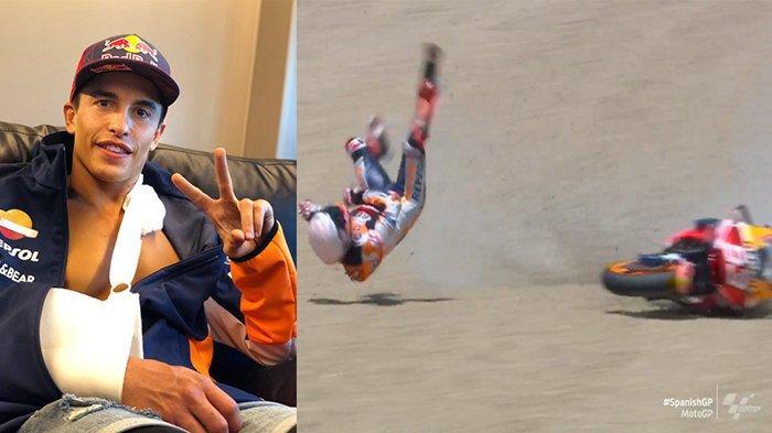 Masih Ingat Marc Marquez? Pembalap Repsol Honda ini Dituding Berbohong Soal Penyebab Cederanya