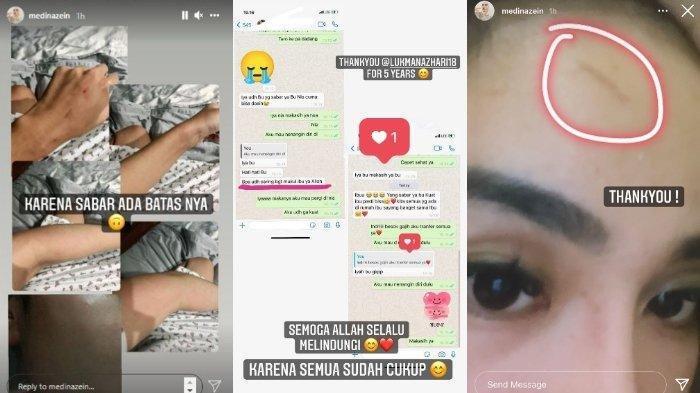 Melalui fitur Instagram Stories, Medina mengunggah foto tangan kirinya yang lecet dan lebam.