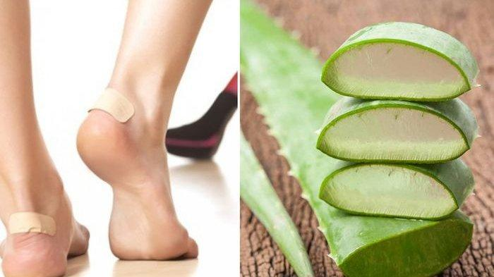 7 Bahan Alami BisaAtasiKaki Lecet Karena Pakai Sepatu