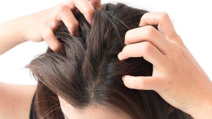 Kutu Rambut Beserta Telur-telurnya Berada di Kepala Anda? Bahan Ini Dapat Menghilangkannya
