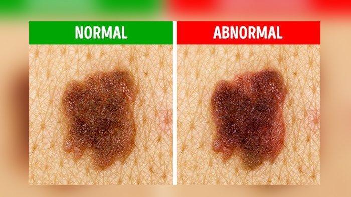 Perbedaan Tahi Lalat dan Melanoma