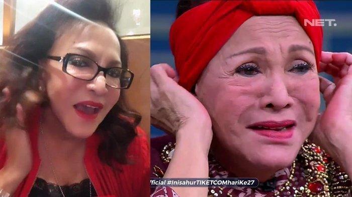 Perubahan wajah Mpok Atiek sebelum dan sesudah operasi pengangkatan silikon