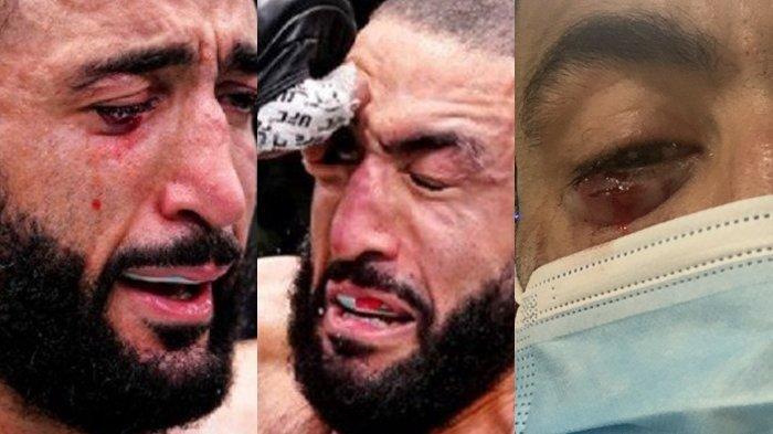 ADA Videonya - Petarung UFC Belal Muhammad Nangis Darah Saat Matanya Kena Colok, Perhatikan Wajahnya