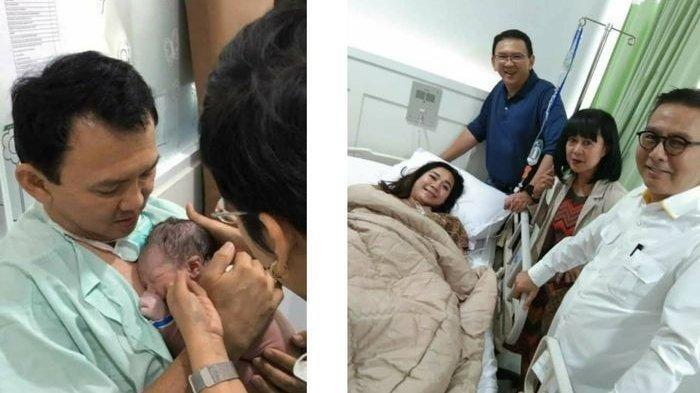 Puput Nastiti Devi Disarankan Tak Menangis untuk Mempercepat Penyembuhan Luka Usai Operasi Sesar
