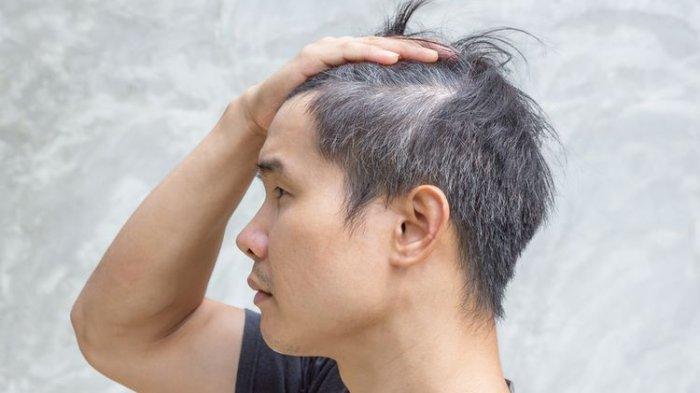 Ilustrasi rambut