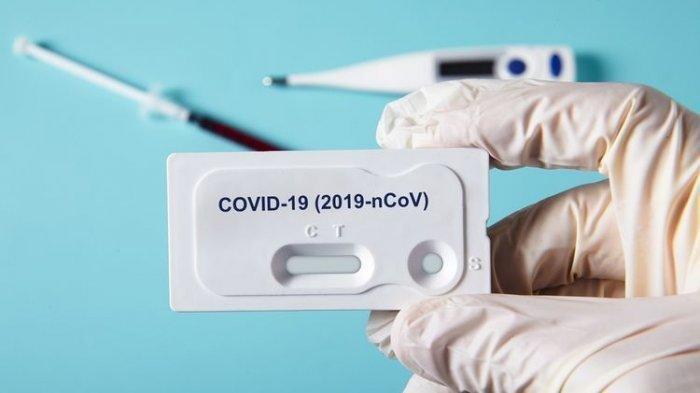 Kader DPC Demokrat Mitra Siap Cek Rapid Virus Corona