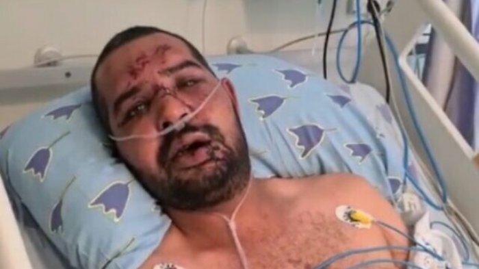 Tiga Orang Yahudi Aniaya Pria Arab-Israel Secara Kejam, Usia Pelaku Dibawah 20 Tahun