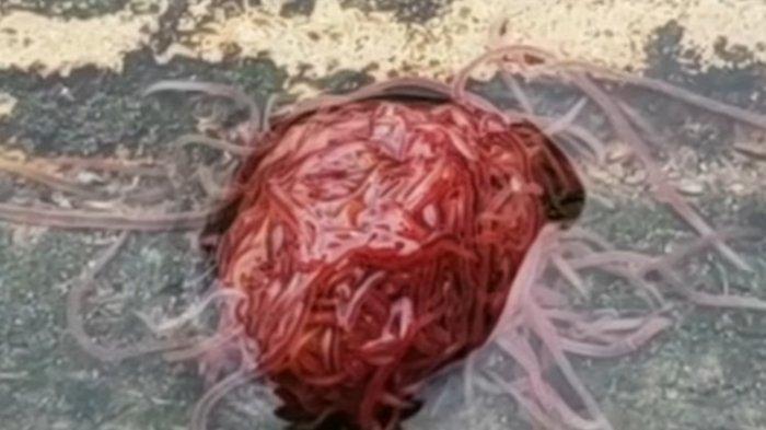 (VIDEO) Warga Texas Menemukan Gumpalan Seperti Otak di Genangan Air