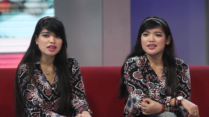 5 Kasus Kembar Siam Paling Terkenal di Dunia, Salah Satunya Ada di Indonesia