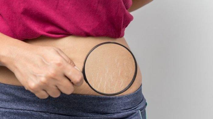 Cara Menghilangkan Stretch Mark, Gunakan Bahan Alami Ini