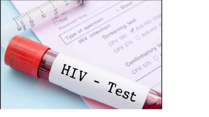 Kisah Perempuan Nekat Menikah dengan Pria Pengidap HIV, Kondisi Keduanya Setelah 6 Tahun