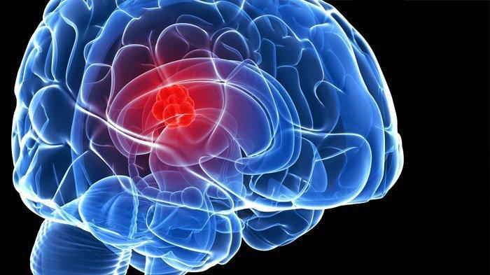 Kenali 6 Gejala Tumor Otak, Sering Kebingungan Bisa Jadi Tandanya