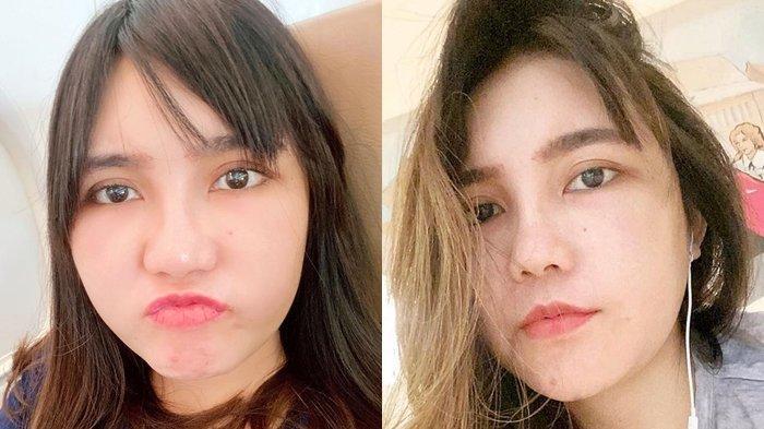 Pipi Via Vallen Mengembang Tak Wajar, Netizen Beri Komentar Pedas, Terus Ditanya Soal Oplas