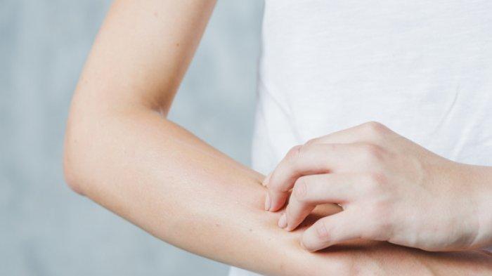 Bisa Timbulkan Infeksi Kulit, Apa Sebenarnya Xerosis?