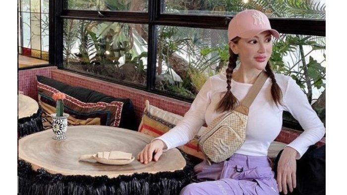 Ingat Xue Zhilun? Dulu Artis Cantik, Kini Wajahnya Berubah Lantaran Ketagihan Operasi Usai Celaka
