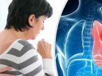 kanker-paru-paru_20181014_025559.jpg