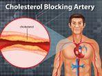 kolesterol-naik-setelah-lebaran.jpg