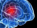 tumor-otak.jpg