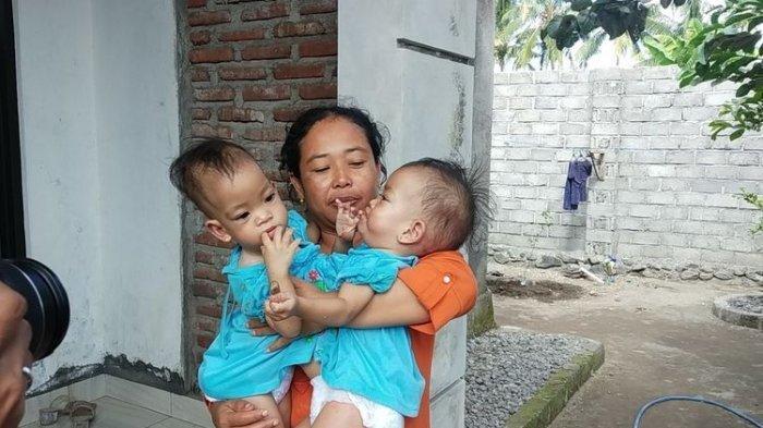Kisah Bayi Kembar Siam di Lombok Hanya Punya 1 Hati, Operasi Pemisahan Perlu Dana 1 Miliar Lebih