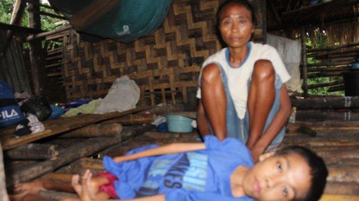 Dominggus Remaja yang Lumpuh Jatuh dari Sepeda Meninggal saat Ditolong, Ibu: Hidup Tak Ada Harapan