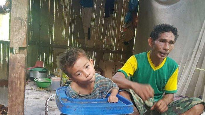 Derita Fransiskus, Bocah 7 Tahun Lumpuh, Terkulai Lemah di Kereta Bayi Tak Sanggup Beli Kursi Roda