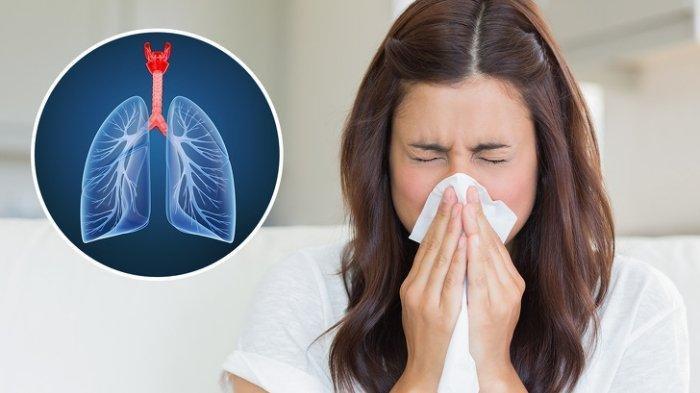 Ilustrasi bersin sering dikaitkan gejala covid-19 atau virus corona