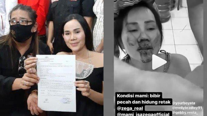 Isa Zega Eks Manajer Lucinta Luna Dianiaya hingga Parah, Nikita Mirzani Disebut-sebut Jadi Dalangnya
