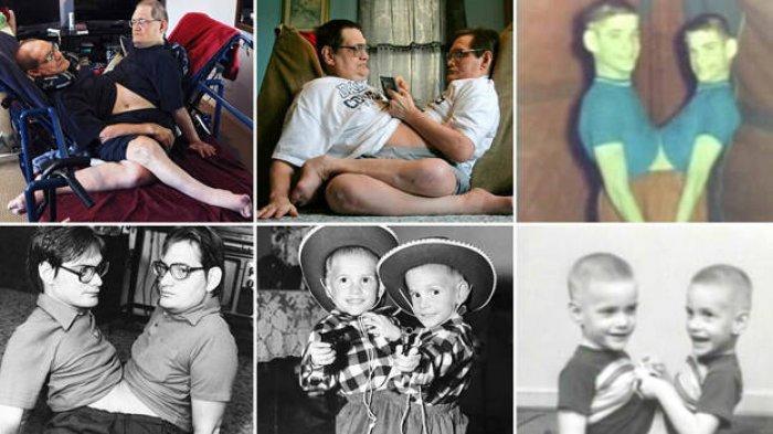POPULER Pembekuan Darah & Radang Sendi Sebabkan Kembar Siam Tertua di Dunia Ronnie-Donnie Meninggal