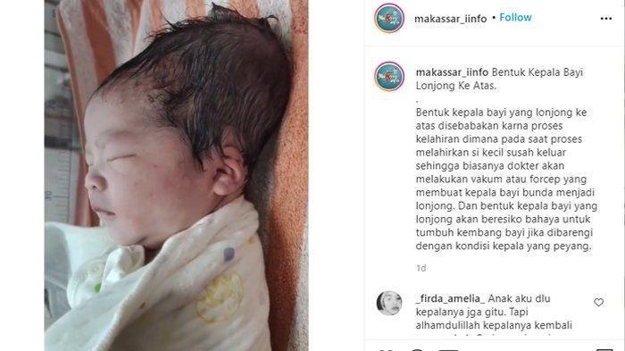 Viral Potret Bayi Berkepala Lonjong, Ternyata Hal Biasa di Dunia Medis, Pakai Cara Ini Biar Normal