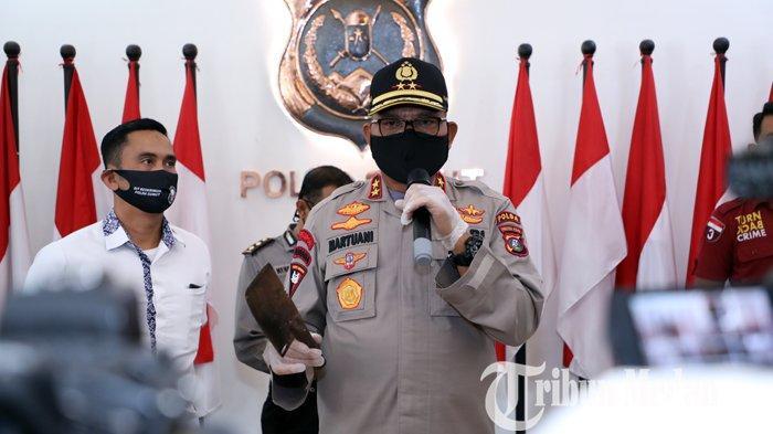 Berita Foto: Polda Sumut Mengungkap Cerita Jambret Sadis Ternyata Rekayasa Erdina Boru Sihombing