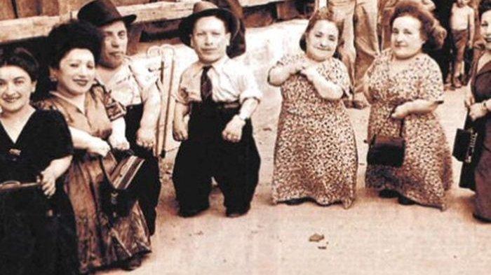 Nasib Keluarga Yahudi Cebol, Jadi Bahan Eksperiman Dokter Psikopat, Justru Selamat karena Fisiknya