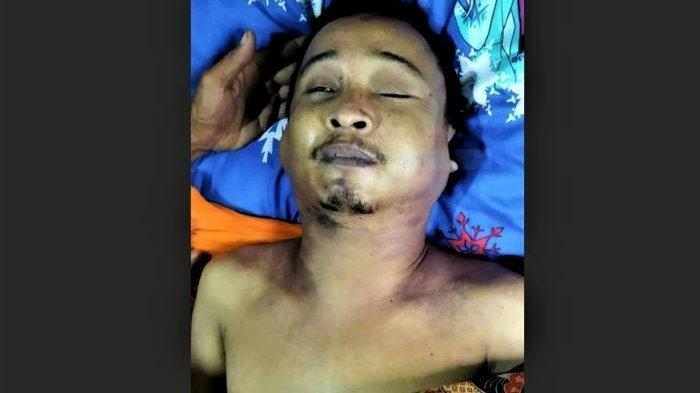 Tiga Polisi Diperiksa Propam Polda Sumut Soal Tahanan Polsek Medan Kota Mati Lebam Membiru