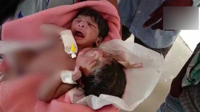 Bayi kembar siam dengan kondisi yang sangat langka lahir dengan dua kepala, tiga lengan dan dua kaki. Ibu bayi tersebut sangat sedih dan pingsan melihat kondisi bayinya.