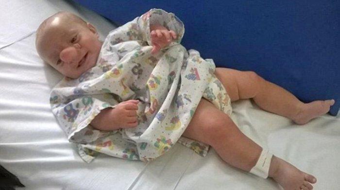 Bayi Ollie lahir dengan kondisi tidak biasa. Ia lahir dengan hidung besar hingga dijuluki Bayi Pinokio.