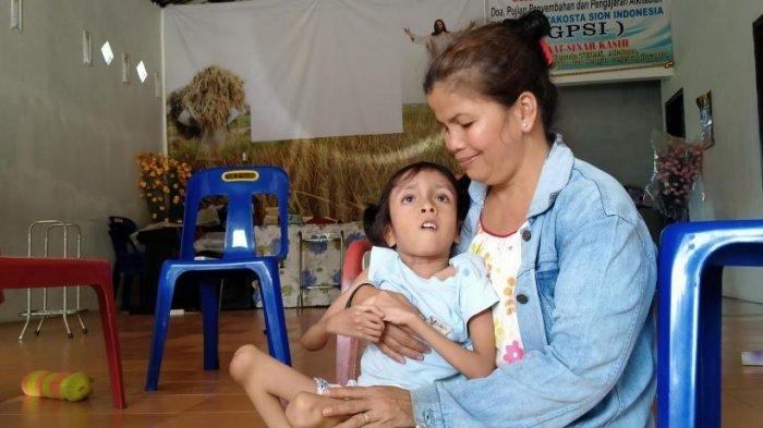 Chelsea, Bocah 5 Tahun Idap Kelainan Tulang Langka, Butuh Uluran Tangan untuk Pengobatan