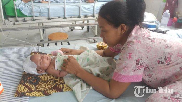 Kondisi Bayi yang Mengalami Pembengkakan Semakin Baik, Luka Mulai Kempis dan Mengering