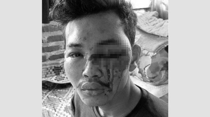 HO Fandi Wahyudi, warga Patumbak yang diculik dan disiksa oknum TNI