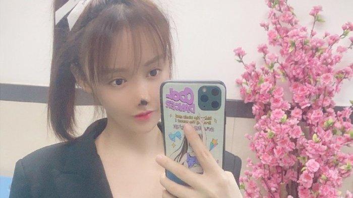 Wajah Cantik Wanita Ini Rusak Setelah Wajah Dibedah Kosmetik, Peringatan Aktris China untuk Wanita