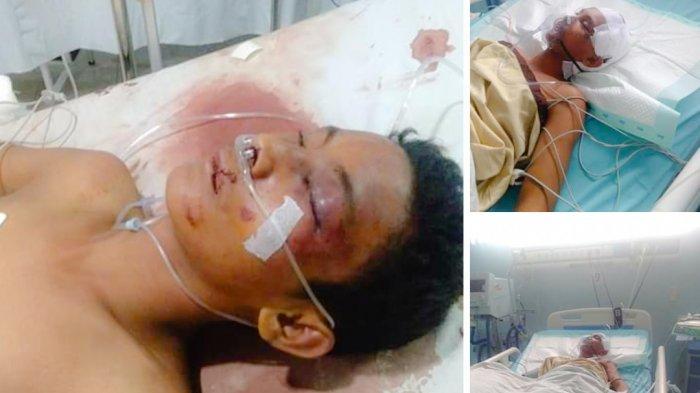 Rico Dilindas dan Dipukuli Anggota Geng Motor Genk Motor Ezto saat Menyerang Rumah Temannya