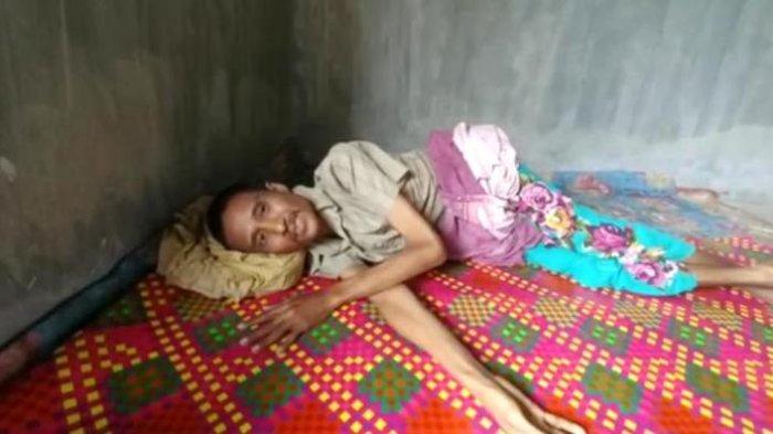 Mirisnya Penderitaan Hermansyah tak Punya KTP Susah Berobat Hidup Merana Tergeletak di Atas Tikar