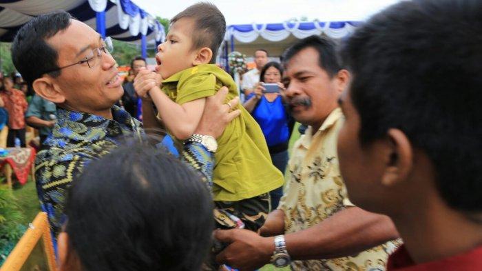 Menebar Kasih, Begini Kepedulian JR Saragih untuk Anak Penderita Hidrosefalus