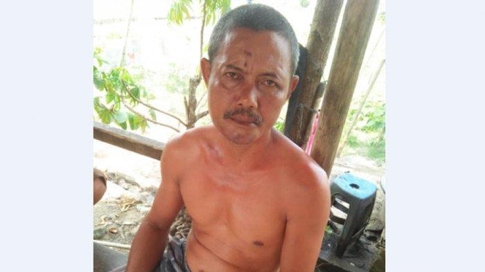Gara-gara Panggilan Telepon, Oknum PNS Pukuli Pemilik Warung Tuak di Simalungun