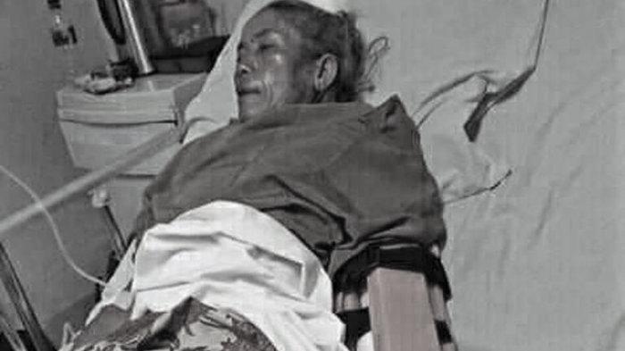 Sudah 1 Tahun Kasus Nenek Dianiaya Orang Bertopeng Belum Terungkap, Ini Respons Kapolres Taput