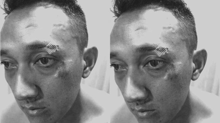 5 Fakta Kapolsek Dikeroyok di Tengah Jalan oleh Bandar Narkoba dan 20 Anak Buahnya Pakai Sajam
