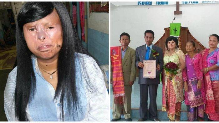 BEGINICerita Sortalina Situmorang yang Pernikahannya Viral di Medsos, Dua Bulan Kenalan lalu Nikah