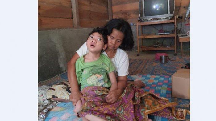 NASIB Gadis Miskin Lumpuh Layu, Belasan Tahun tak Tersentuh Medis, Berharap Belas Kasih Dermawan