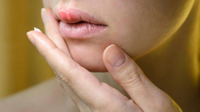 MENGENALHerpes Zoster, Penyakit yang Menular Lewat Pernapasan dan Sentuhan Kulit