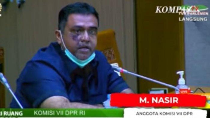 Mulanya Marah-marah Usir Dirut Inalum Saat Rapat tapi Ujungnya Anggota DPR Muhammad Nasir Minta CSR