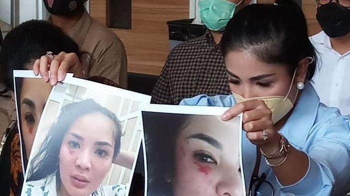 Nindy Ayunda menunjukkan foto-foto lebam pada wajahnya akibat kekerasan dari suaminya, Askara Parasady, di kantor Komnas Perempuan, Jakarta, Selasa (16/2/2021).