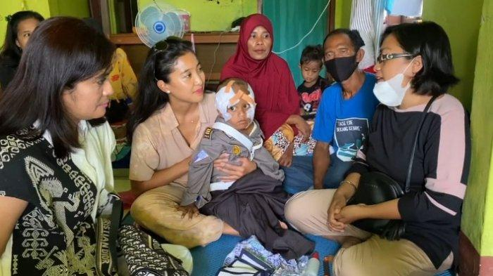 Artis Olivia Zalianty menggendong anak balita digigit Komodo di Manggarai Barat NTT, Sabtu.